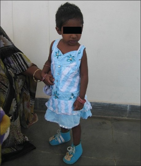 Figure 1: Girl with stunted growth due to gross negligence