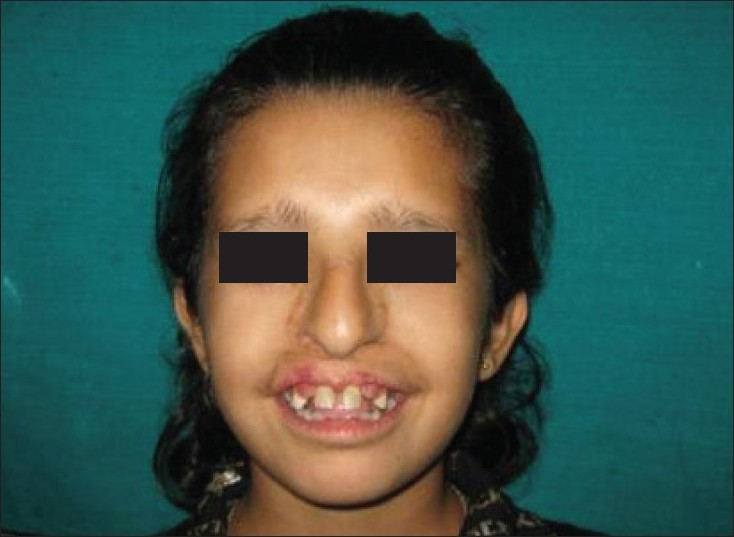 Physical and dental manifestations of oral-facial-digital syndrome