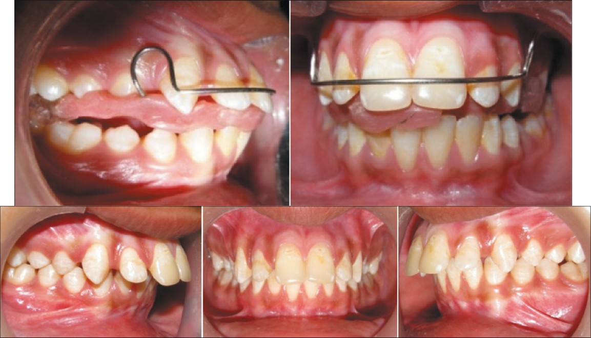 Figure 8a: Activator in place
