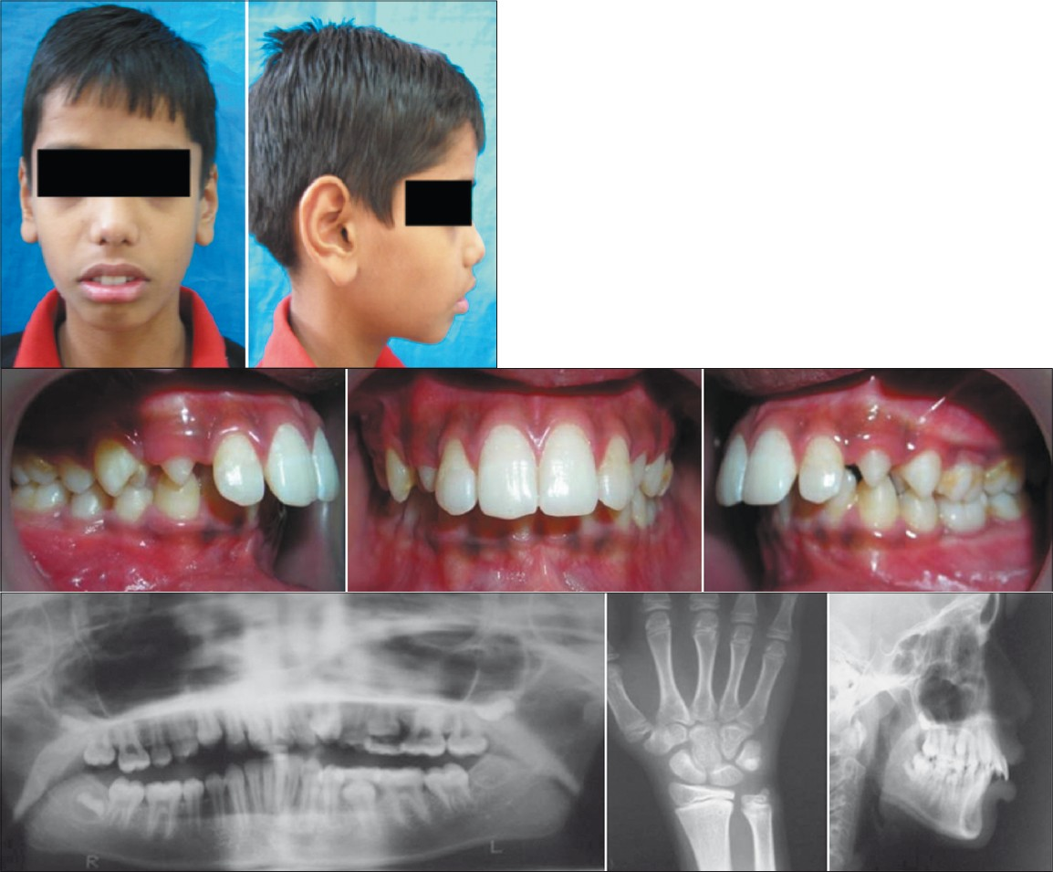 Figure 1a: pretreatment extra-oral photographs