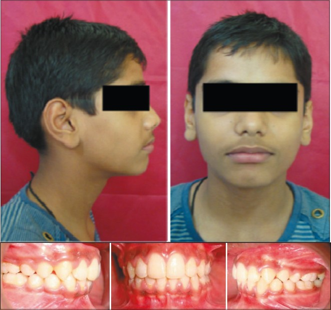 Figure 3a: Post-treatment extra-oral photograph