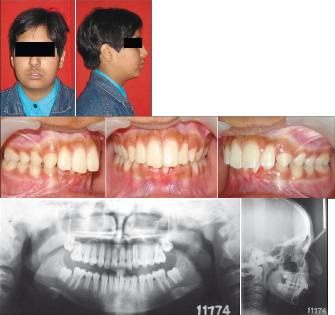Figure 4a: Pretreatment extra-oral photographs
