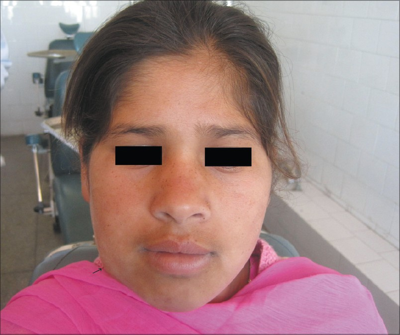 Figure 1: Swelling present on the right side of the face