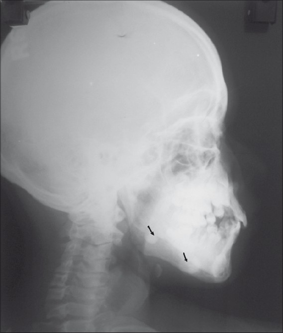 Figure 3: Lateral oblique showing bilateral mandibular osteomas