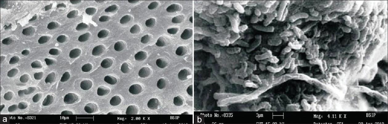 Figure 3: Scanning electron microscopy of deciduous teeth treated with chemomechanical method ( a ) showing no bacterial deposits and ( b ) showing bacterial deposits