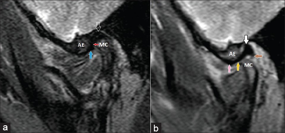 Figure 3: A, Closed mouth sagittal oblique T2 fat-suppressed MR image of left TMJ demonstrates larger posterior band (open arrow) lies over the mandibular condyle (MC), thin intermediate zone (red arrow) between the MC and posterior part of the articular eminence (AE) while the anterior band (blue arrow) is located under the AE. B, Open mouth sagittal oblique T2 fat-suppressed MR image of the same side shows normal translation of MC which reaches under the apex of the AE and thin intermediate zone (yellow arrow) is located over the condyle and thus the posterior band (white arrow) and retrodiskal tissue (brown arrow) are more clearly depicted. Note the location of anterior band (pink arrow) in open mouth view