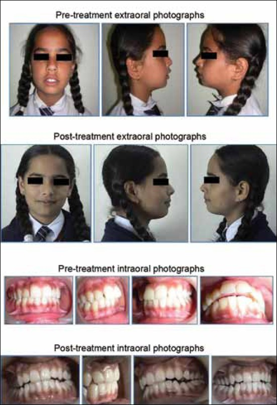 Figure 1: Pre‑treatment (extra‑oral and intra‑oral) and post‑treatment (extra‑oral and intra‑oral) photograph of the patient following successful treatment outcome concurrent with Twin Block appliance