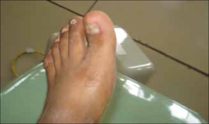 Figure 4: Foot of the patient showing partial Anonychia