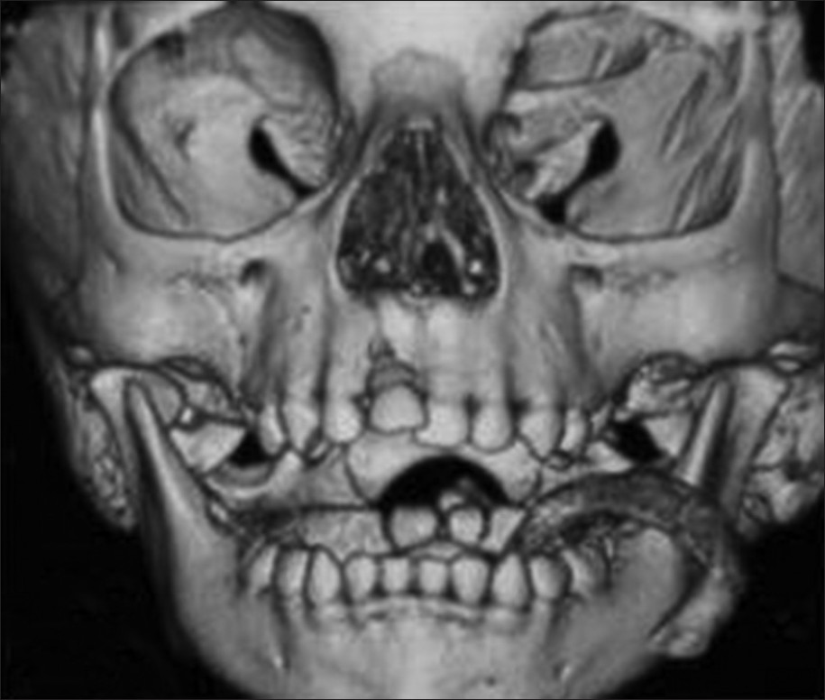 Figure 3: CT scan of the face: Buccal luxation of 51 evident, no other abnormality detected