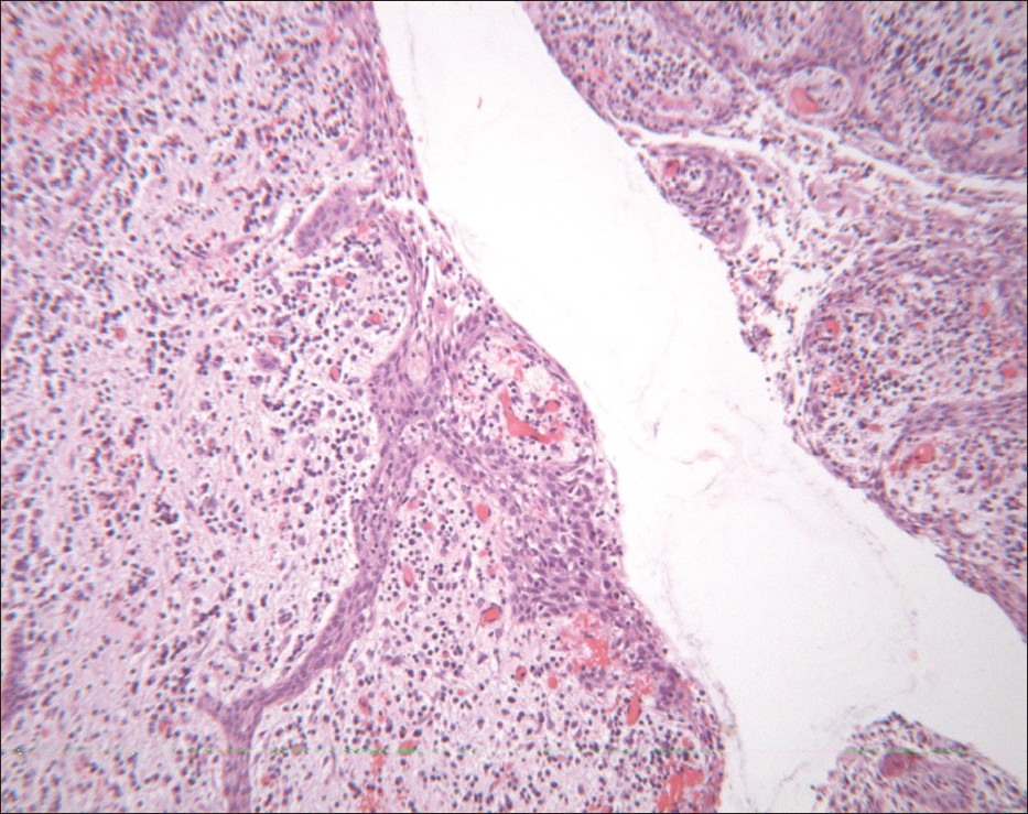 Figure 6: Histopathological analysis of the two cysts