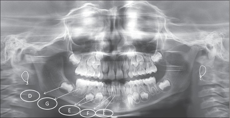 Figure 1: OPG image of a child depicting the various developmental stages of mandibular teeth scored according to Demirjian's criteria. D - The crown formation is completed down to the cemento-enamel junction; beginning of root formation is seen in the form of a spicule, E - The root length is less than the crown height, F - The root length is equal to or greater than the crown height, G - The walls of the root canal are parallel and are still partially open