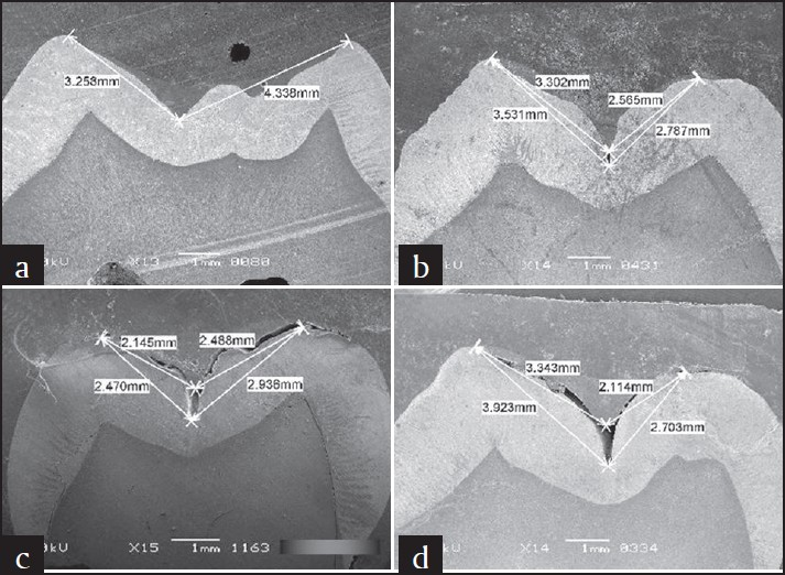 Figure 1: Scanning electron microscope pictures showing penetration of sealant into fissures in different Clinpro groups; (a) dry, (b) dried saliva, (c) water, (d) saliva