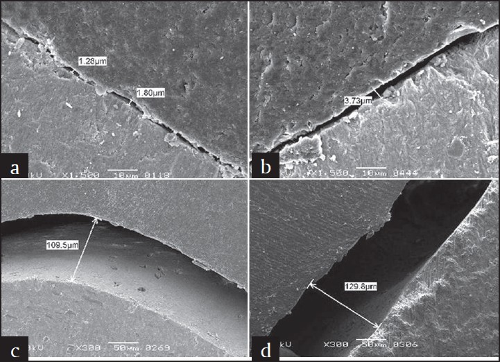 Figure 3: Scanning electron microscope pictures showing gaps along lateral wall of fissures in different Clinpro groups; (a) dry, (b) dried saliva, (c) water, (d) saliva