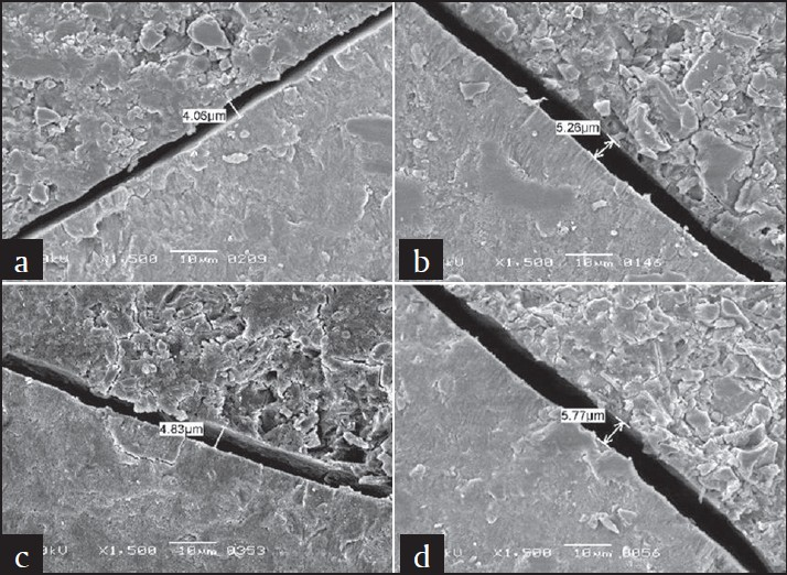 Figure 4: Scanning electron microscope pictures showing gaps along lateral wall of fissures in different Fuji Triage groups; (a) dry, (b) dried saliva, (c) water, (d) saliva