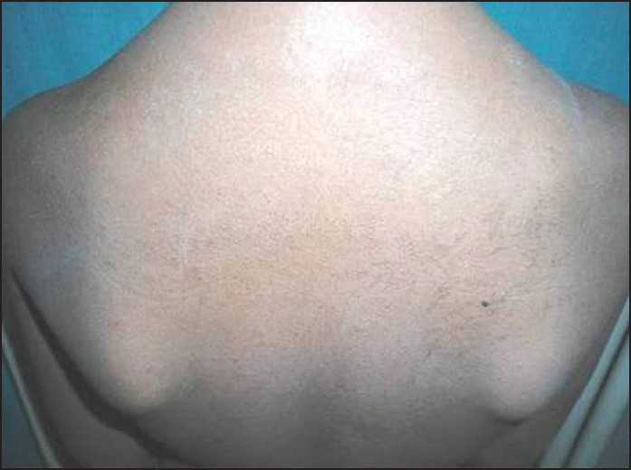 Figure 2: Multiple papules involving skin of the back