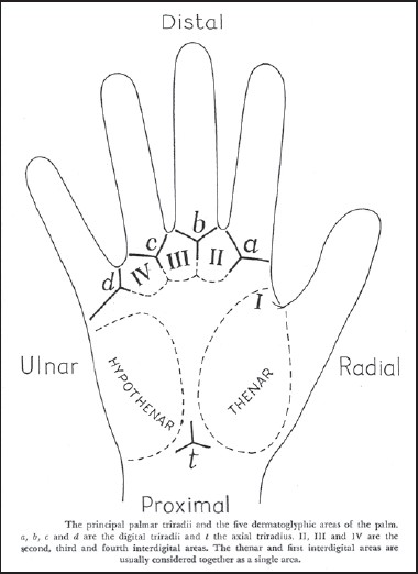 Figure 1: Four palmar areas and a,b,c,d,t-triradii