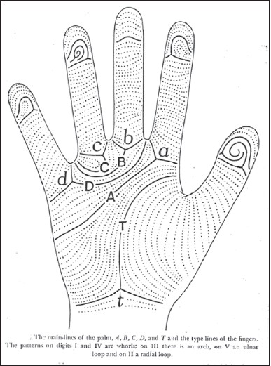Figure 2: Main lines on the palm and pattern on fi nger tips