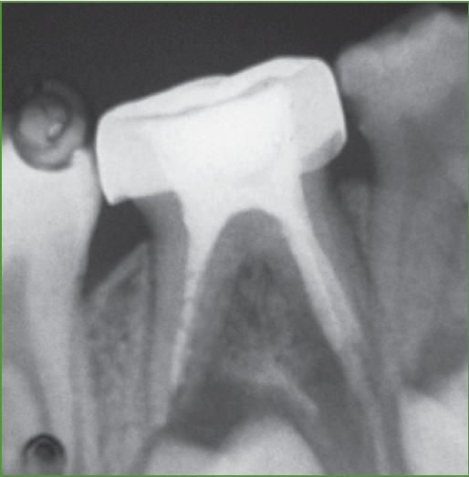 obturating materials in primary teeth pdf