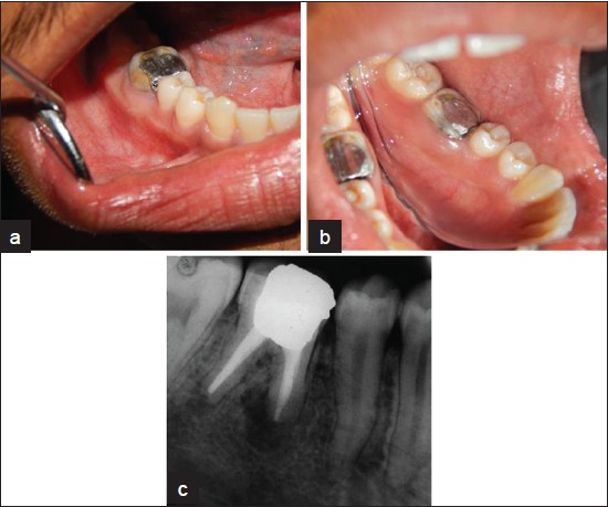Accidental periapical extrusion of non-setting calcium