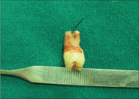 Figure 5: Reconstructed tooth using wax showing visible grooving on the roots