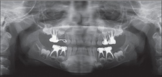 Figure 3: Six months postoperative orthopantmograph showing complete resorption of overfi lled material from periapical areas