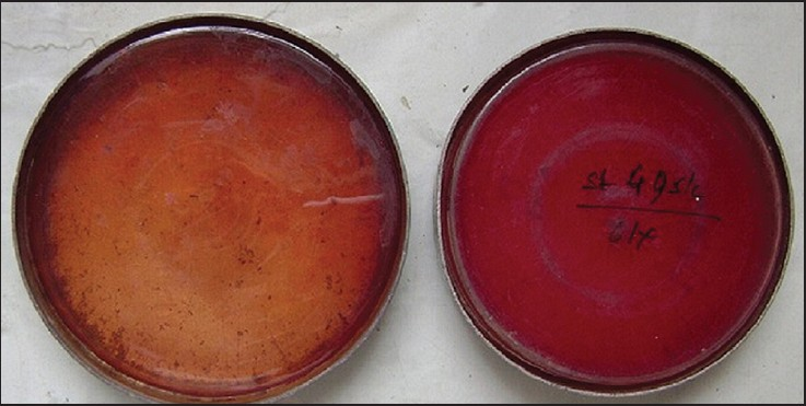 Figure 3: Cultures for aerobic and facultative anaerobes made on MacConkey's agar and blood agar medium