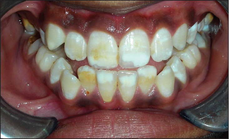 Figure 2: Demarcated opacities on incisors (mild hypomineralization)