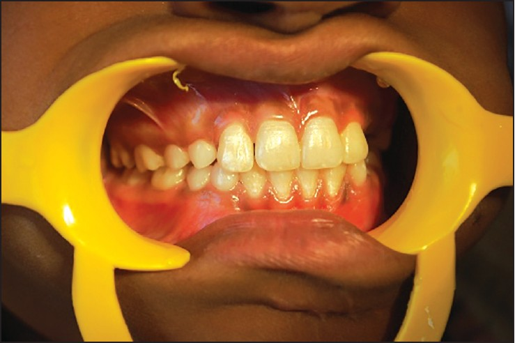 Figure 8: Intraoral photograph at 6-months follow-up, where the proper occlusion is now established