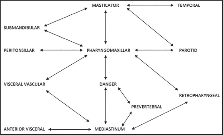 Bilateral deep neck space infection in pediatric patients: Review of ...