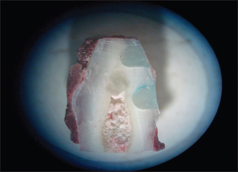 Figure 6: Prepared coronal section through the centre of the restoration as seen through a stereomicroscope at 40 × magnification to asses dye penetration at the margins of the restoration