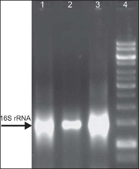 Figure 2: Amplification of 16S gene using <i>S. mutans</i> genomic DNA as template (lane 1, 2, and 3) against 1,000 base pair ladder (lane 4)