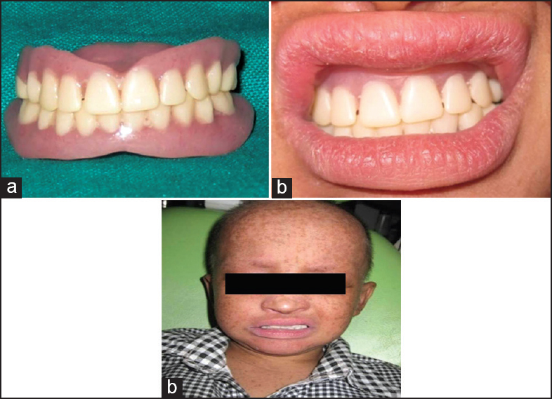 Figure 5: (a) Complete denture. (b) Insertion of complete denture. (c) Prosthetic rehabilitation with complete denture