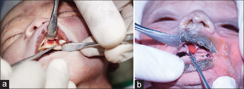 Figure 1: (a) Surgical removal of the tooth germs from the stillborn infant's maxillary arch. (b) Surgical removal of the tooth germ from the jaw of the 10-day-old neonate