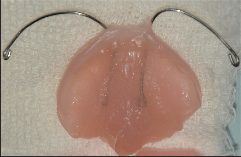 Figure 3: Final prosthesis after relining with soft liner