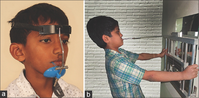Figure 1: Maxillary protraction appliances. (a) Facemask (b) Maxgym