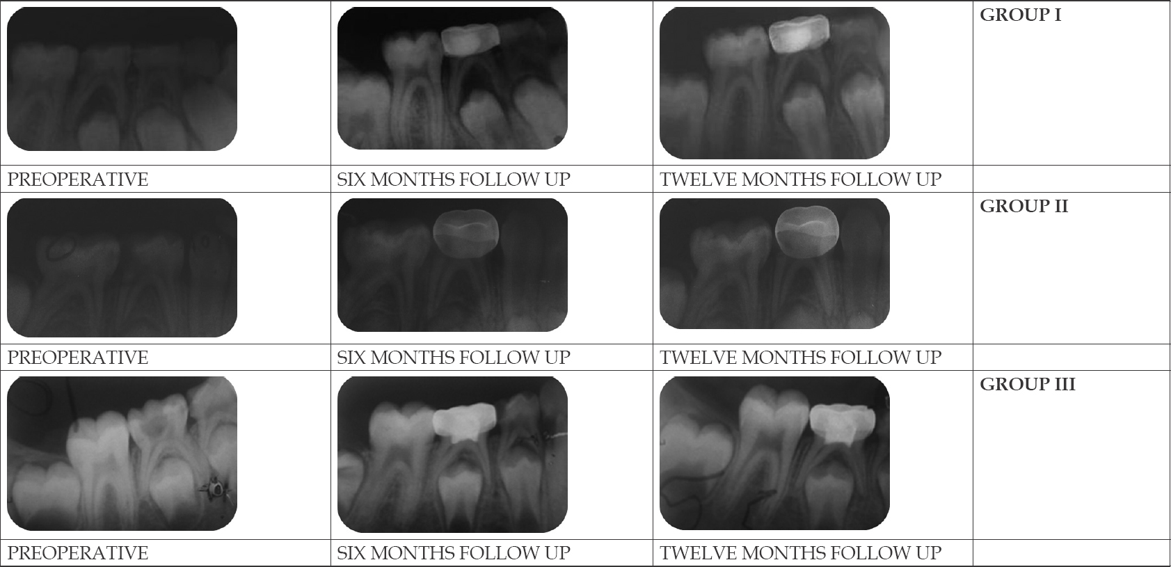 Figure 2: Radiographic success of all three groups preopratively and at six and twelve months follow up