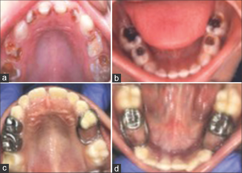 Figure 1:(a) Preoperative intraoral photographs of a patient from experimental group. (b) Preoperative intraoral photographs of a patient from experimental group. (c) Postoperative intraoral photographs with no new caries. (d) Postoperative intraoral photographs with no new caries