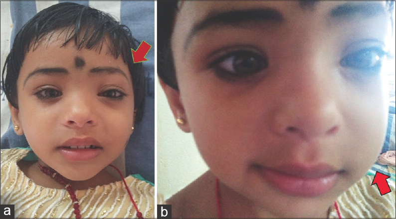 Figure 1: (a and b) Facial asymmetry on the left side with narrowing of the left eye