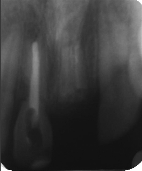 Figure 6: Postoperative intraoral periapical radiograph after 4 months