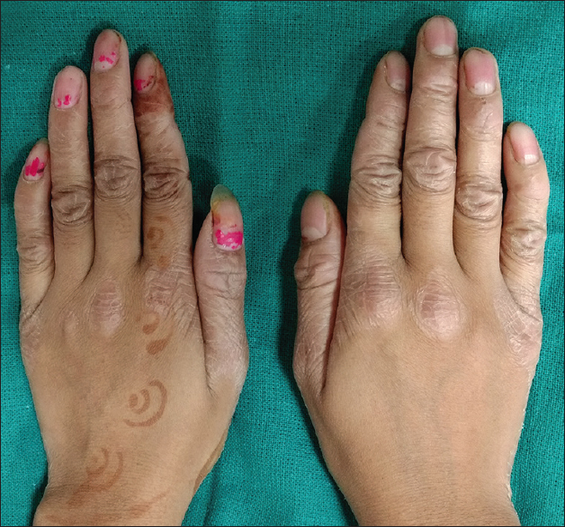 Figure 1: Well-demarcated keratotic lesions on the dorsal surface on hands