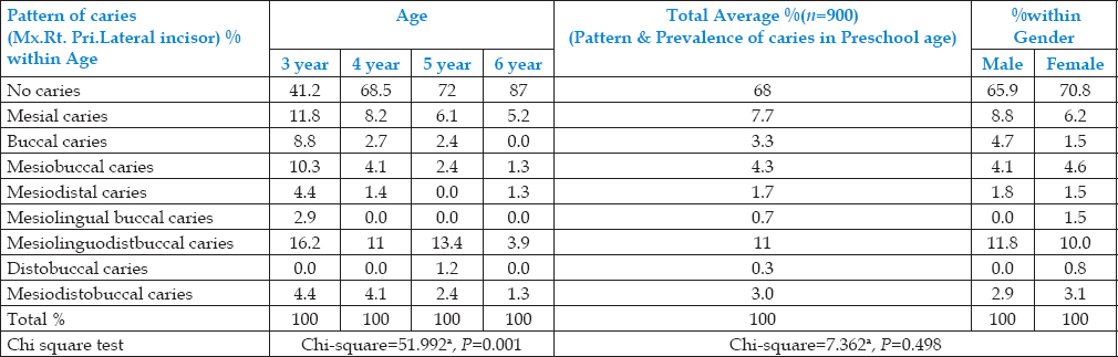 Table 2: Age and Gender wise Prevalence &Pattern of Caries in Maxillary Right Primary lateral incisor