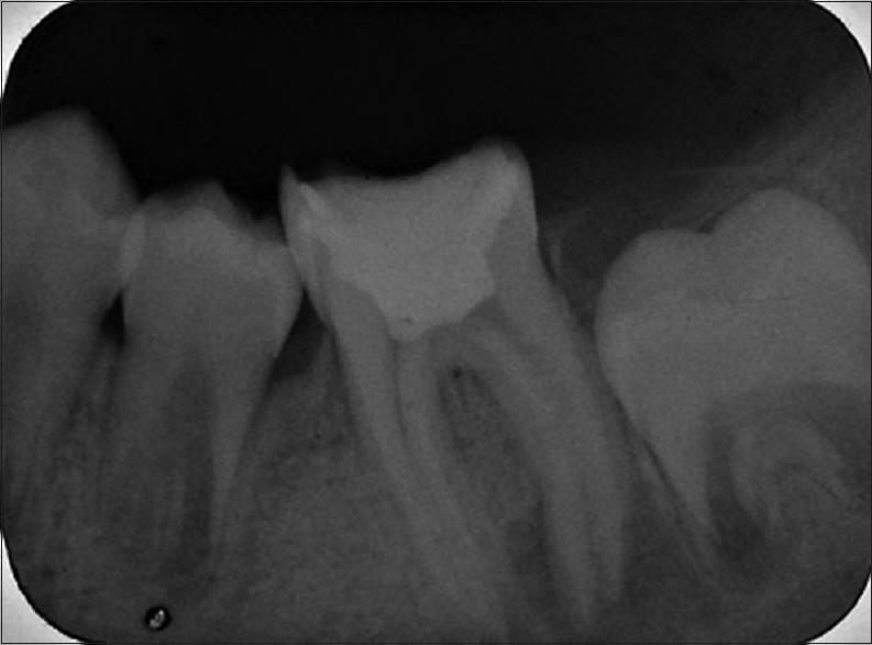 Figure 2: Initial periapical radiograph showing large radiolucent lesion in the tooth 36