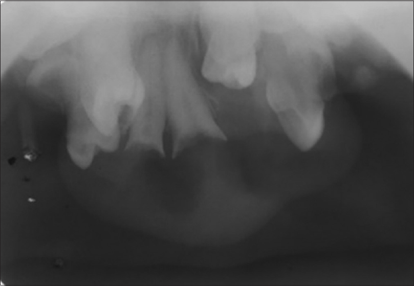 Figure 3: Maxillary anterior occlusal radiograph showing root pieces and crowding